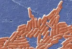 Image of a microscopic view of salmonella