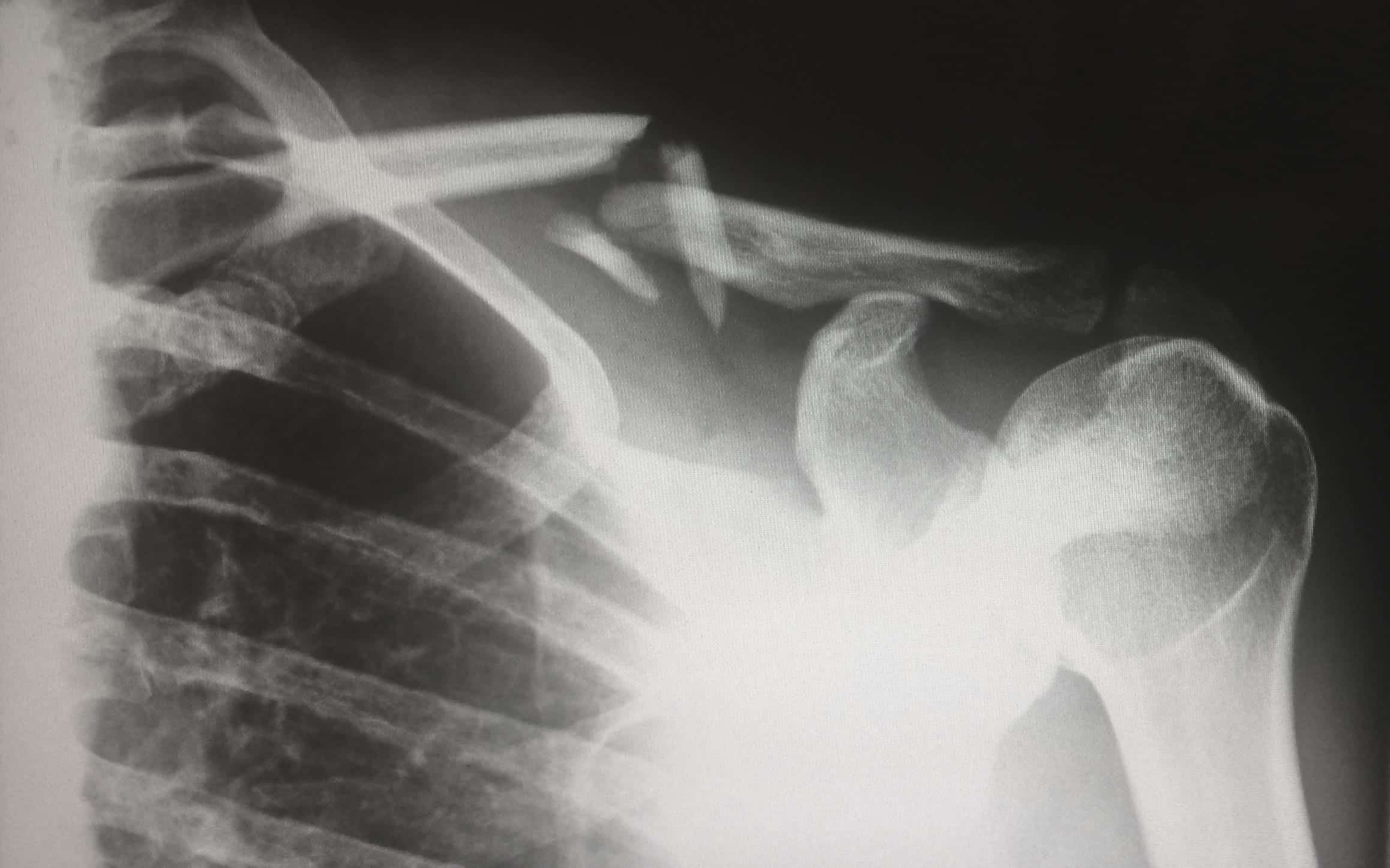 X-ray of person with broken collarbone; image by Harlie Raethel, via unsplash.com.