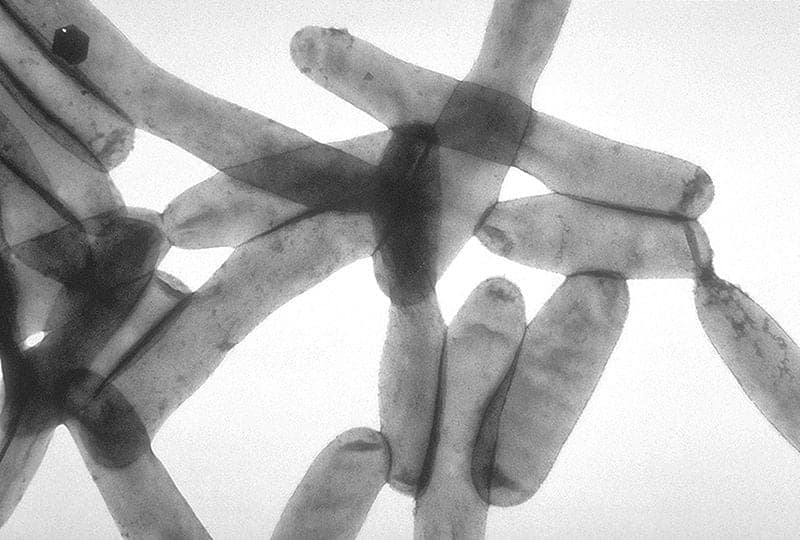 L. pneumophila, responsible for over 90% of Legionnaires' disease cases